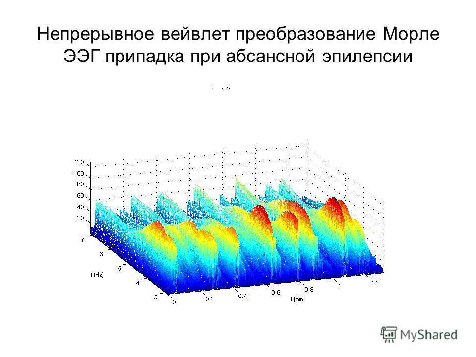 Непрерывное вейвлет преобразование Морле ЭЭГ припадка при абсансной эпилепсии