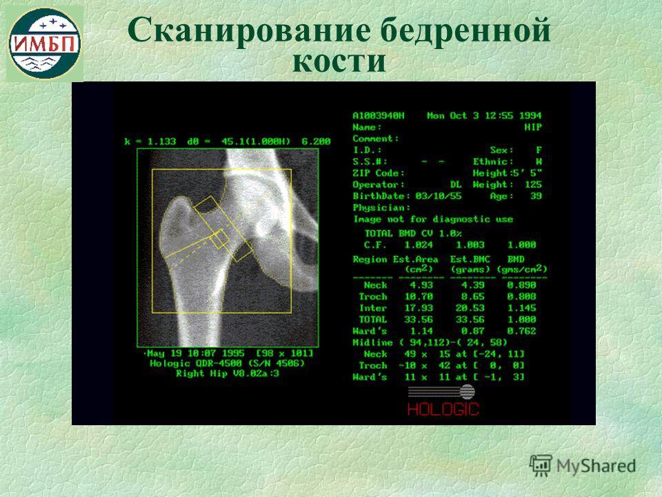 Сканирование бедренной кости
