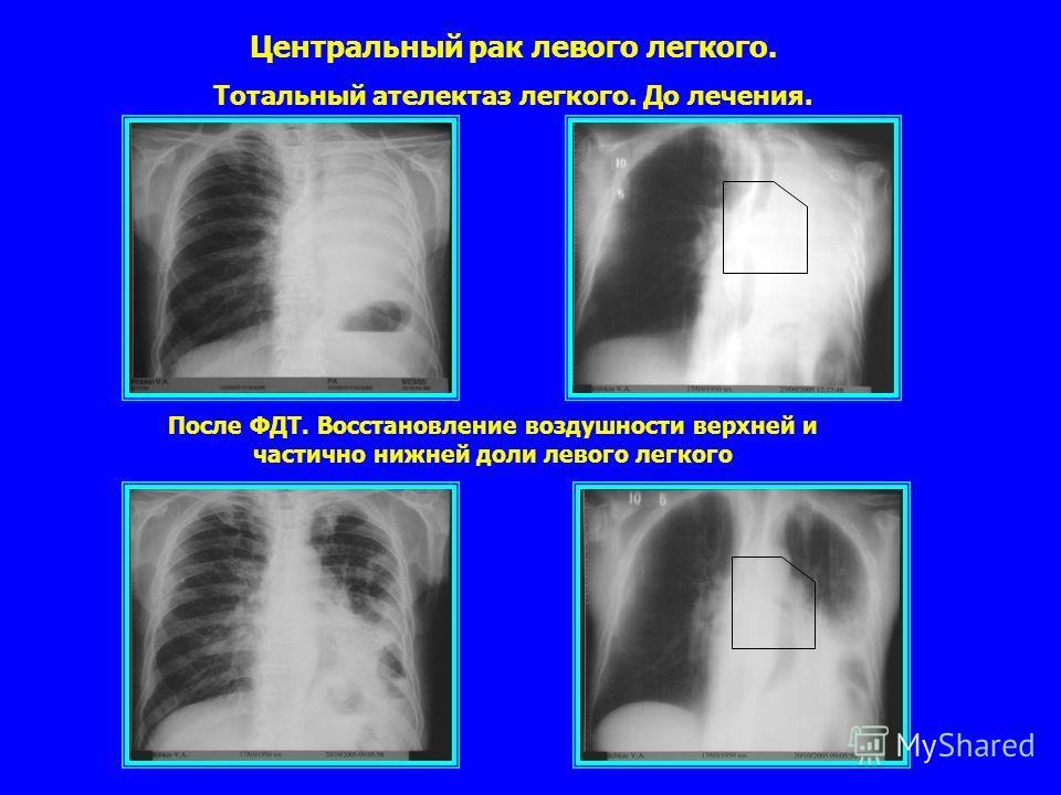 После ФДТ. Восстановление воздушности верхней и частично нижней доли левого легкого Центральный рак левого легкого. Тотальный ателектаз легкого. До лечения.