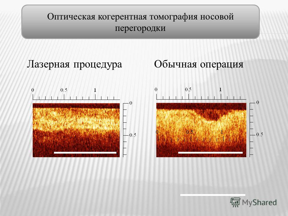 Лазерная процедура Обычная операция 00.51 Оптическая когерентная томография носовой перегородки