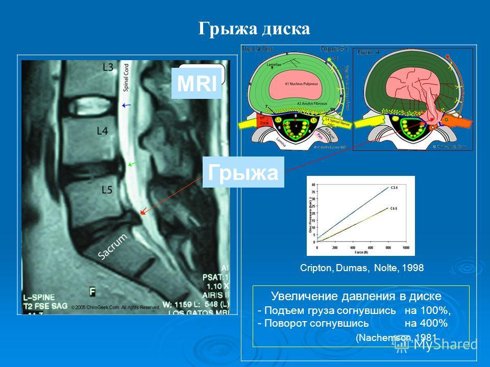 Грыжа диска MRI Грыжа Cripton, Dumas, Nolte, 1998 Увеличение давления в диске - Подъем груза согнувшисьна 100%, - Поворот согнувшись на 400% (Nachemson, 1981