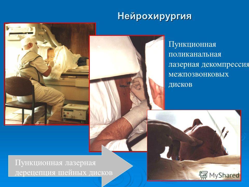 Нейрохирургия Пункционная поликанальная лазерная декомпрессия межпозвонковых дисков Пункционная лазерная дерецепция шейных дисков