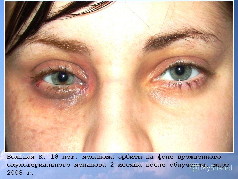 Больная К. 18 лет, меланома орбиты на фоне врожденного окулодермального меланоза 2 месяца после облучения, март 2008 г.