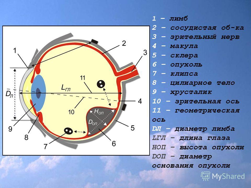 1 – лимб 2 – сосудистая об-ка 3 – зрительный нерв 4 – макула 5 – склера 6 – опухоль 7 – клипса 8 – цилиарное тело 9 – хрусталик 10 – зрительная ось 11 – геометрическая ось DЛ – диаметр лимба LГЛ – длина глаза HОП – высота опухоли DОП – диаметр основа