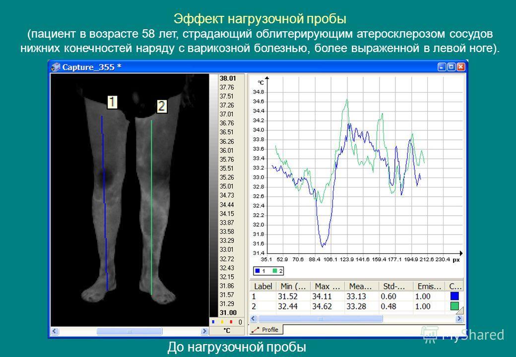 До нагрузочной пробы Эффект нагрузочной пробы (пациент в возрасте 58 лет, страдающий облитерирующим атеросклерозом сосудов нижних конечностей наряду с варикозной болезнью, более выраженной в левой ноге).