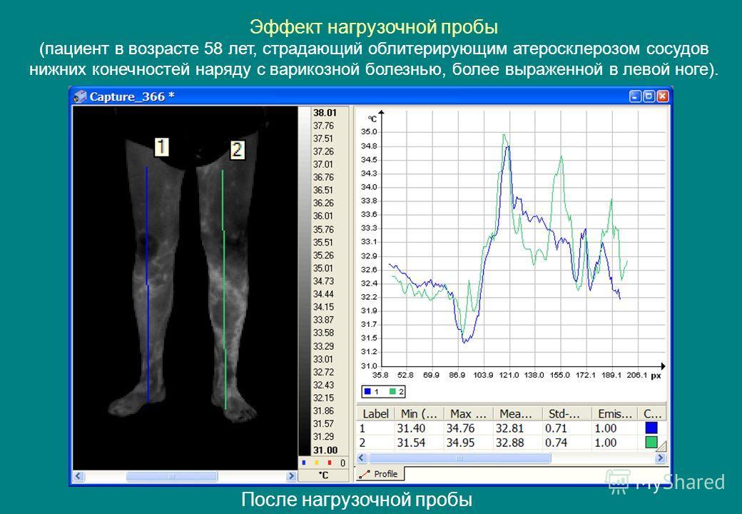 После нагрузочной пробы Эффект нагрузочной пробы (пациент в возрасте 58 лет, страдающий облитерирующим атеросклерозом сосудов нижних конечностей наряду с варикозной болезнью, более выраженной в левой ноге).