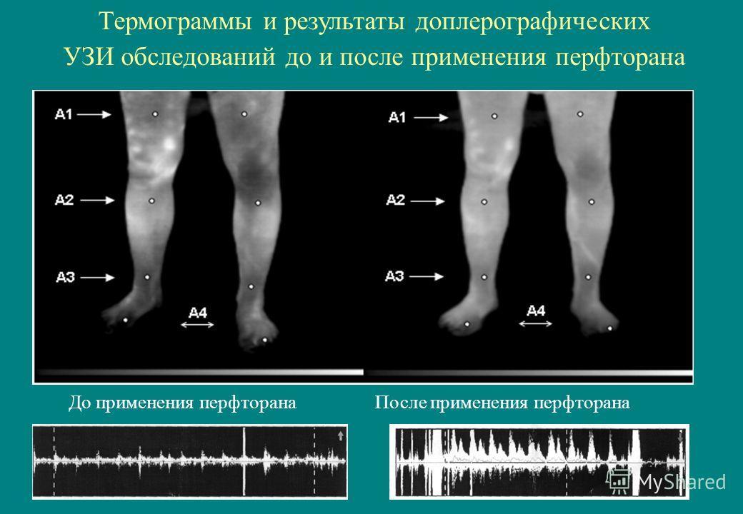 До применения перфторана После применения перфторана Термограммы и результаты доплерографических УЗИ обследований до и после применения перфторана