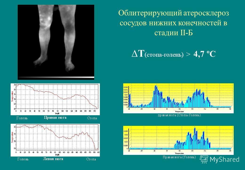 Облитерирующий атеросклероз сосудов нижних конечностей в стадии II-Б Т (стопа-голень) > 4,7 ºС