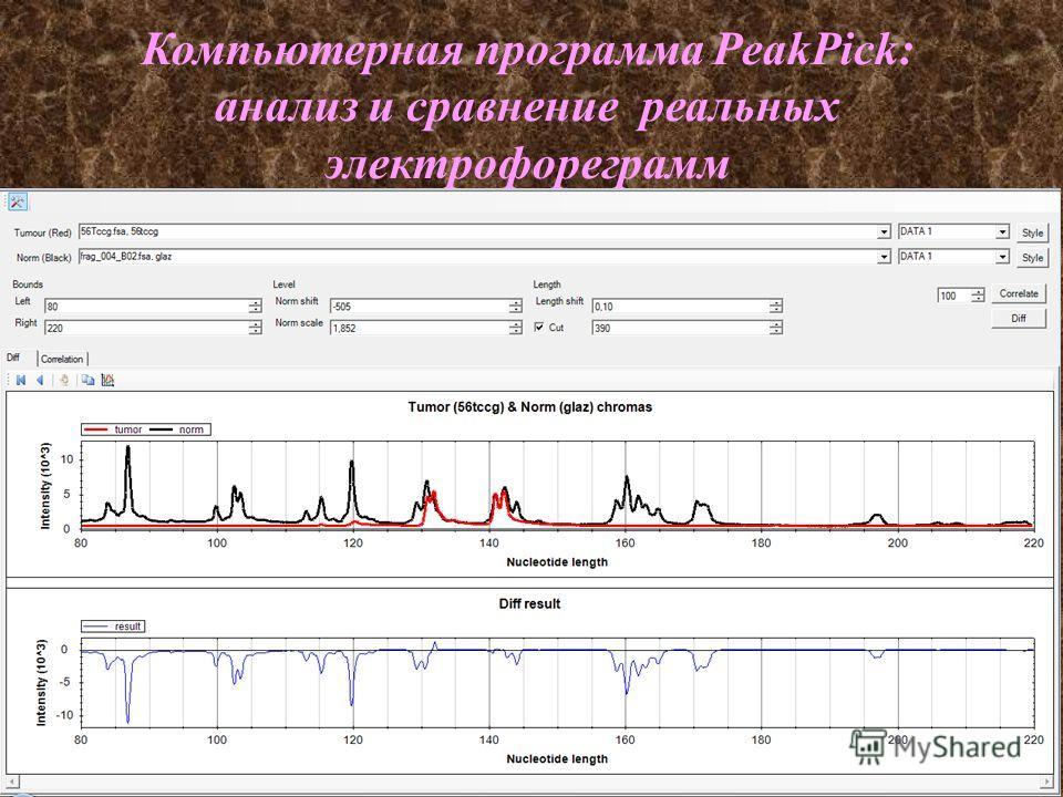 Компьютерная программа PeakPick: анализ и сравнение реальных электрофореграмм