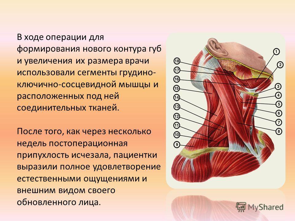 В ходе операции для формирования нового контура губ и увеличения их размера врачи использовали сегменты грудино- ключично-сосцевидной мышцы и расположенных под ней соединительных тканей. После того, как через несколько недель постоперационная припухл