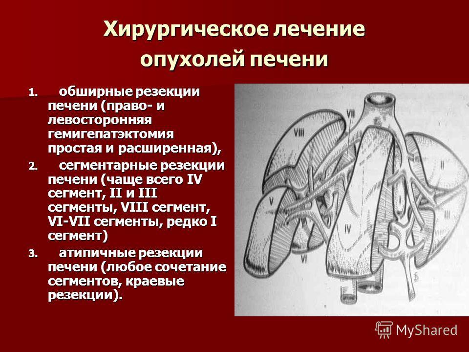 Хирургическое лечение опухолей печени 1. обширные резекции печени (право- и левосторонняя гемигепатэктомия простая и расширенная), 2. сегментарные резекции печени (чаще всего IV сегмент, II и III сегменты, VIII сегмент, VI-VII сегменты, редко I сегме