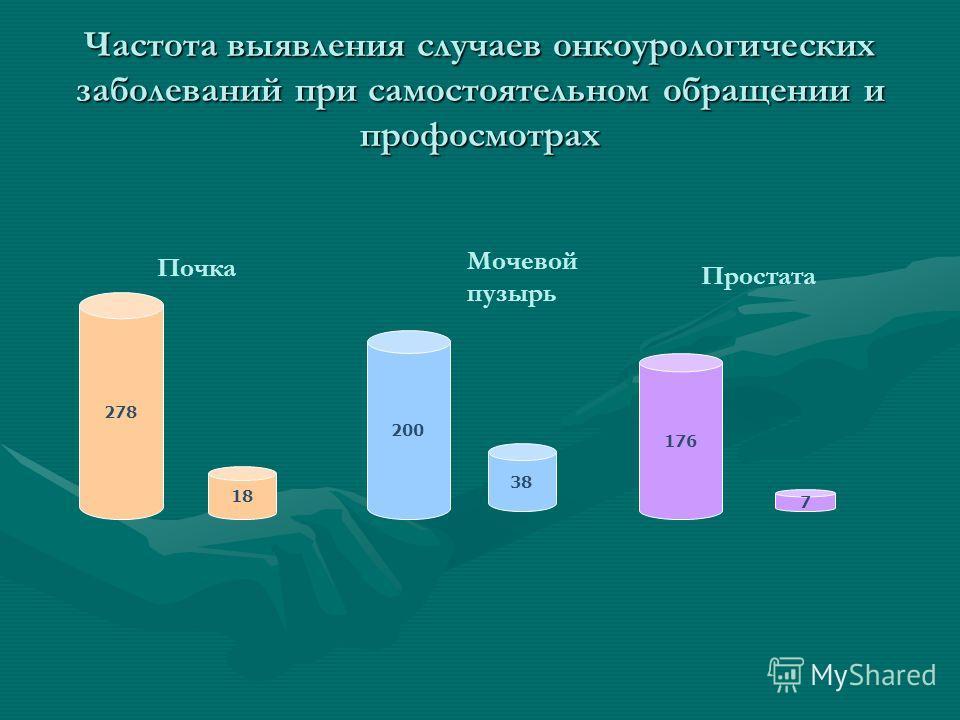 Частота выявления случаев онкоурологических заболеваний при самостоятельном обращении и профосмотрах 278 18 200 38 176 7 Почка Мочевой пузырь Простата