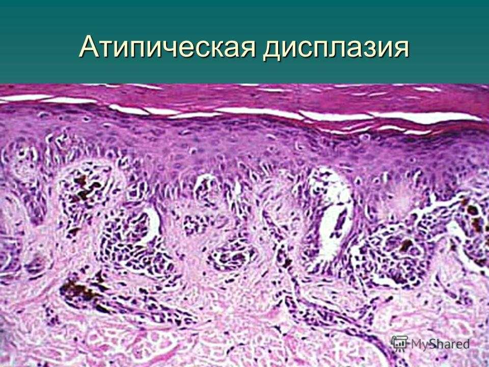 Атипическая дисплазия