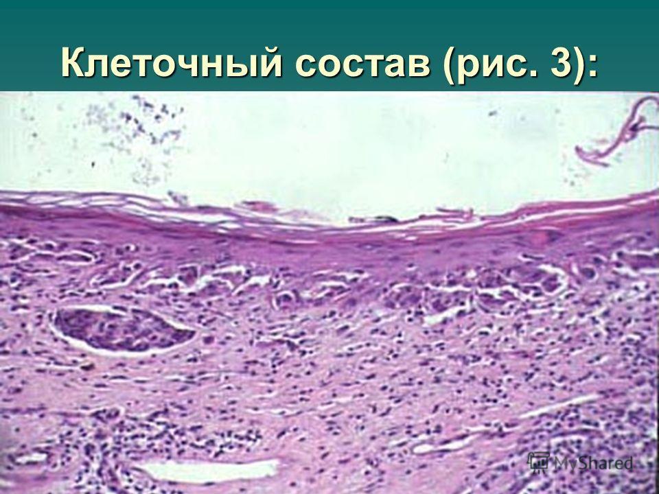 Клеточный состав (рис. 3):