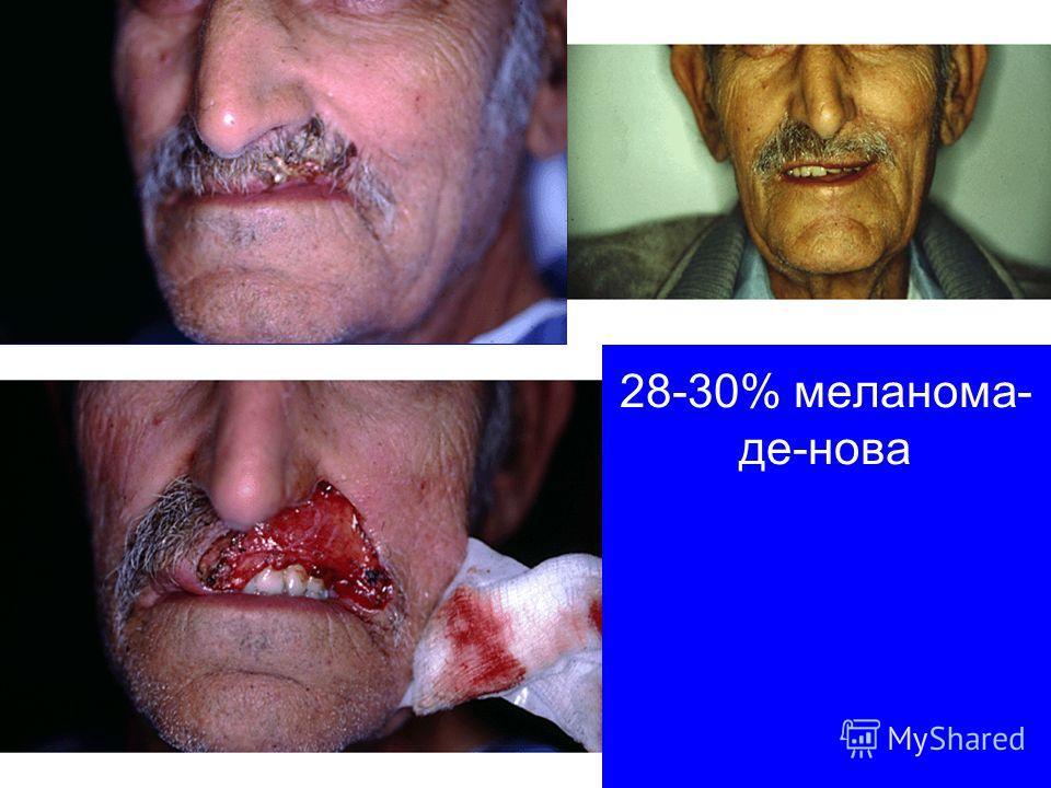 28-30% меланома- де-нова