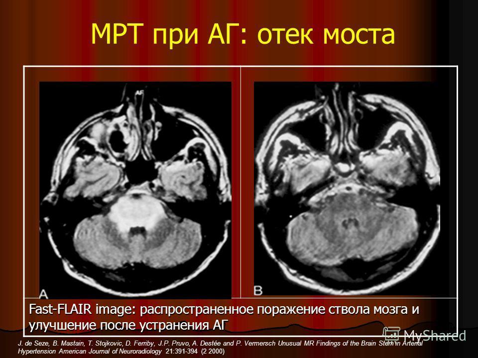 МРТ при АГ: отек моста Fast-FLAIR image: распространенное поражение ствола мозга и улучшение после устранения АГ J. de Seze, B. Mastain, T. Stojkovic, D. Ferriby, J.P. Pruvo, A. Destée and P. Vermersch Unusual MR Findings of the Brain Stem in Arteria
