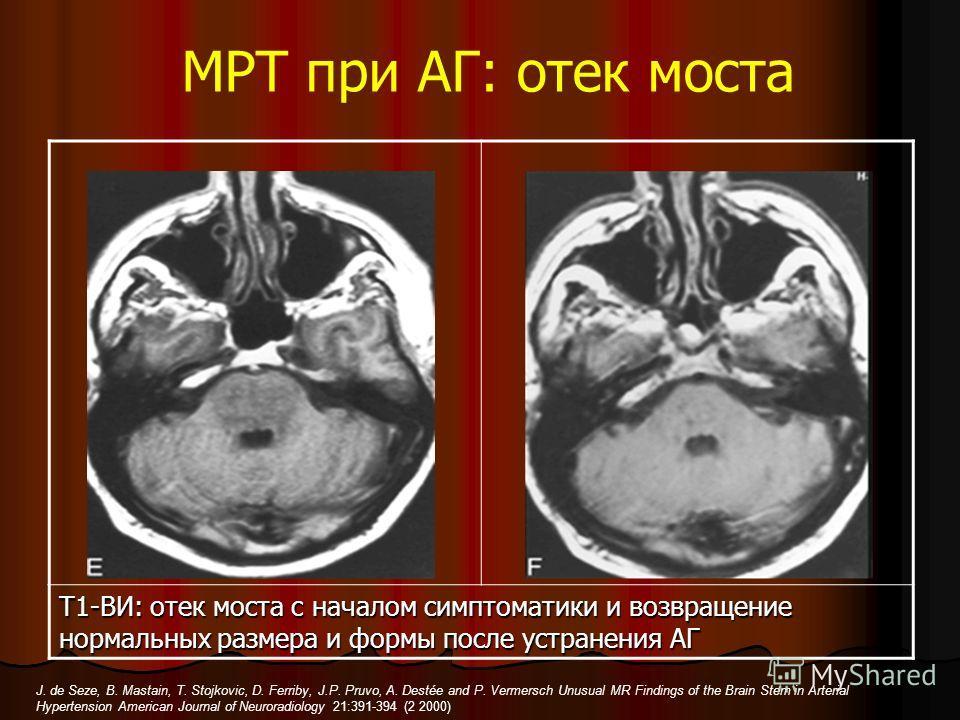МРТ при АГ: отек моста Т1-ВИ: отек моста с началом симптоматики и возвращение нормальных размера и формы после устранения АГ J. de Seze, B. Mastain, T. Stojkovic, D. Ferriby, J.P. Pruvo, A. Destée and P. Vermersch Unusual MR Findings of the Brain Ste