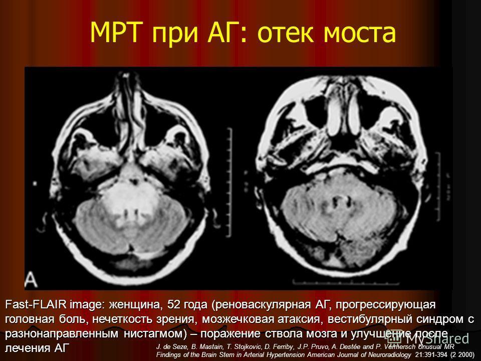 МРТ при АГ: отек моста Fast-FLAIR image: женщина, 52 года (реноваскулярная АГ, прогрессирующая головная боль, нечеткость зрения, мозжечковая атаксия, вестибулярный синдром с разнонаправленным нистагмом) – поражение ствола мозга и улучшение после лече