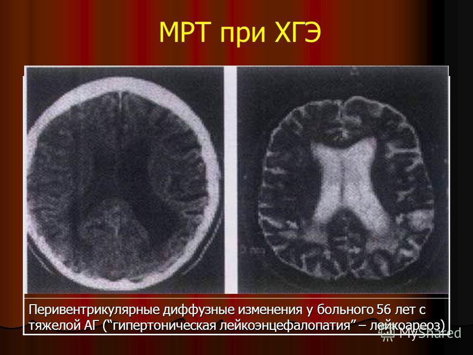 МРТ при ХГЭ Перивентрикулярные диффузные изменения у больного 56 лет с тяжелой АГ (гипертоническая лейкоэнцефалопатия – лейкоареоз)