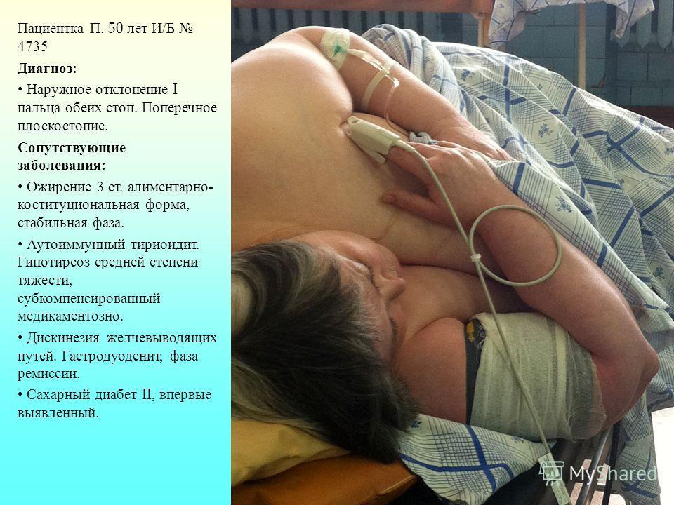 Пациентка П. 50 лет И / Б 4735 Диагноз : Наружное отклонение I пальца обеих стоп. Поперечное плоскостопие. Сопутствующие заболевания : Ожирение 3 ст. алиментарно - коституциональная форма, стабильная фаза. Аутоиммунный тириоидит. Гипотиреоз средней с