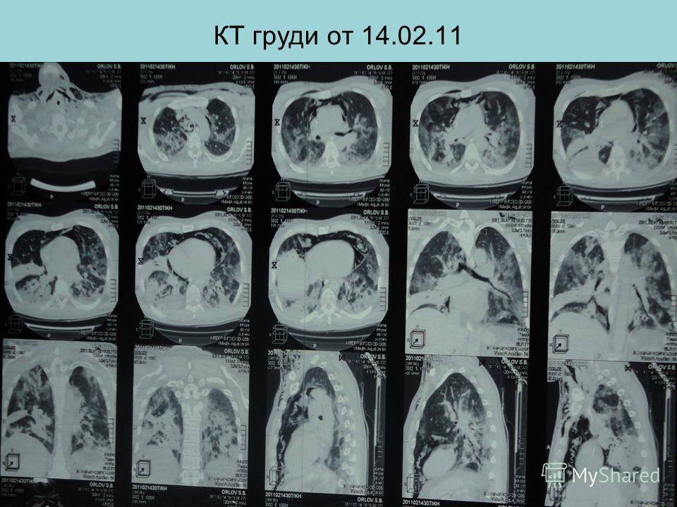 КТ груди от 14.02.11