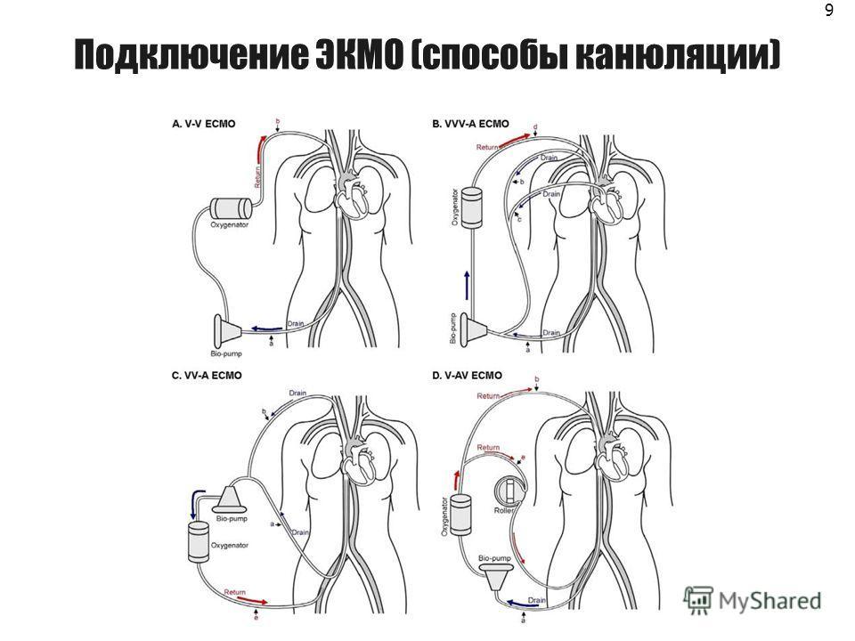 Подключение ЭКМО (способы канюляции) 9