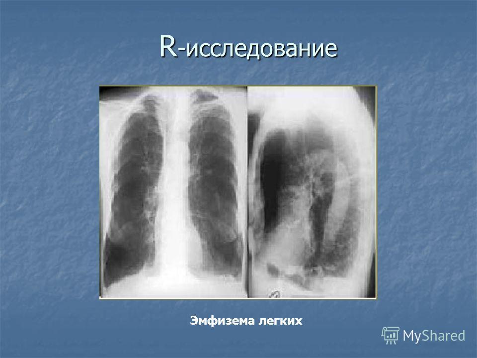 R -исследование Эмфизема легких