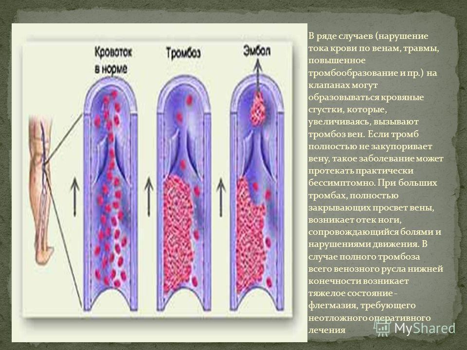 В ряде случаев (нарушение тока крови по венам, травмы, повышенное тромбообразование и пр.) на клапанах могут образовываться кровяные сгустки, которые, увеличиваясь, вызывают тромбоз вен. Если тромб полностью не закупоривает вену, такое заболевание мо