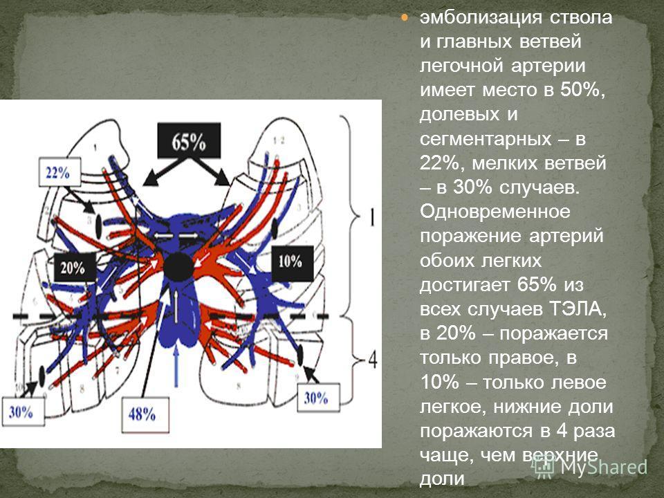 эмболизация ствола и главных ветвей легочной артерии имеет место в 50%, долевых и сегментарных – в 22%, мелких ветвей – в 30% случаев. Одновременное поражение артерий обоих легких достигает 65% из всех случаев ТЭЛА, в 20% – поражается только правое,