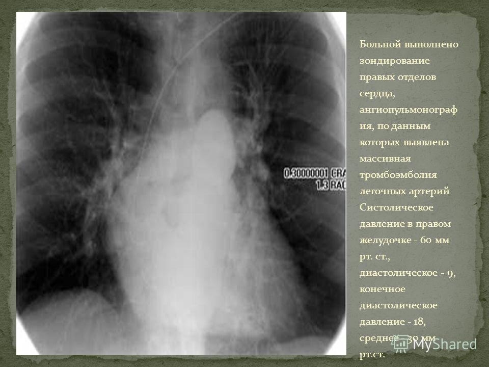 Больной выполнено зондирование правых отделов сердца, ангиопульмонограф ия, по данным которых выявлена массивная тромбоэмболия легочных артерий Систолическое давление в правом желудочке - 60 мм рт. ст., диастолическое - 9, конечное диастолическое дав
