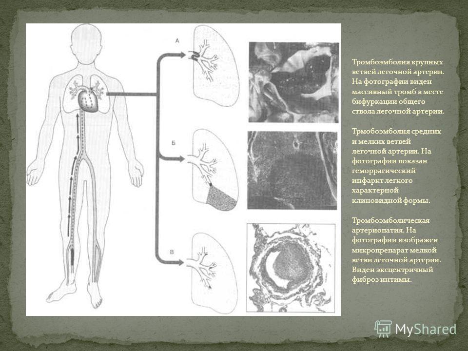 Тромбоэмболия крупных ветвей легочной артерии. На фотографии виден массивный тромб в месте бифуркации общего ствола легочной артерии. Трмобоэмболия средних и мелких ветвей легочной артерии. На фотографии показан геморрагический инфаркт легкого характ