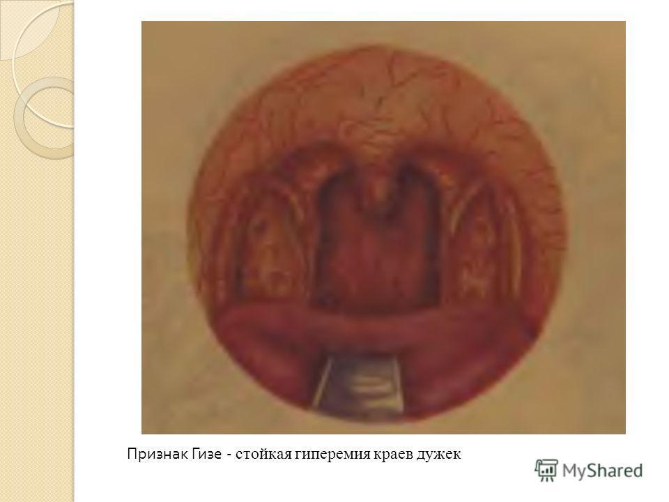 Признак Гизе - стойкая гиперемия краев дужек