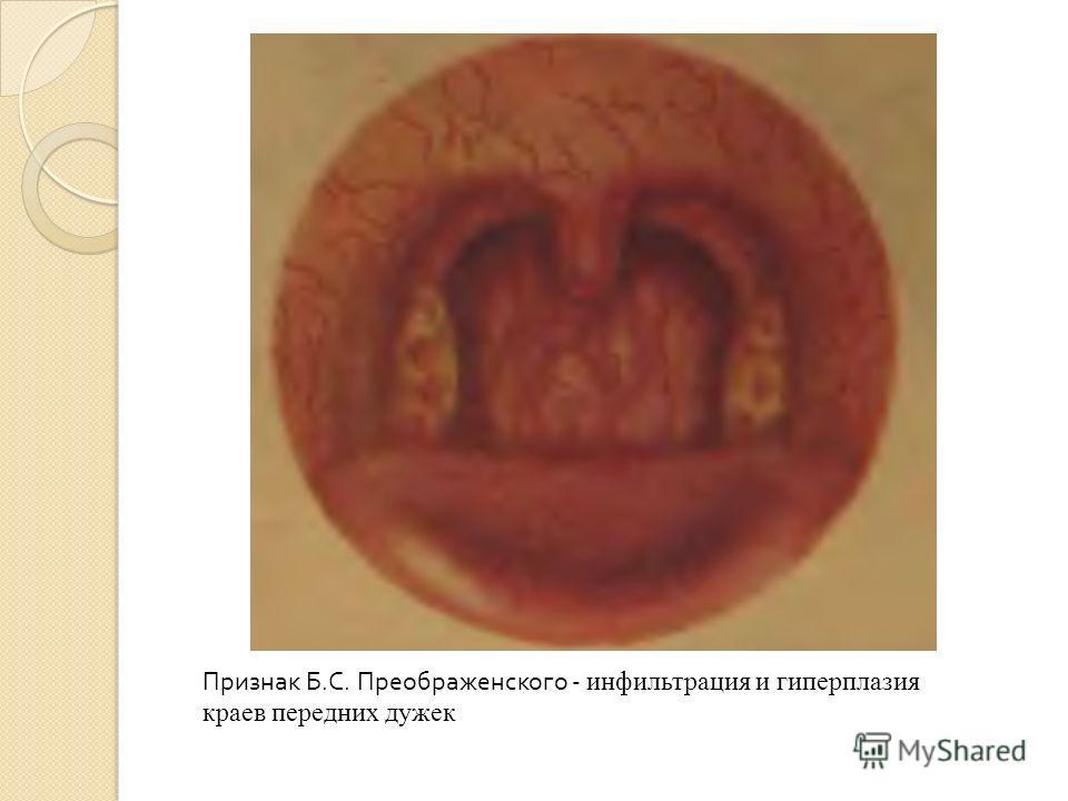 Признак Б.С. Преображенского - инфильтрация и гиперплазия краев передних дужек