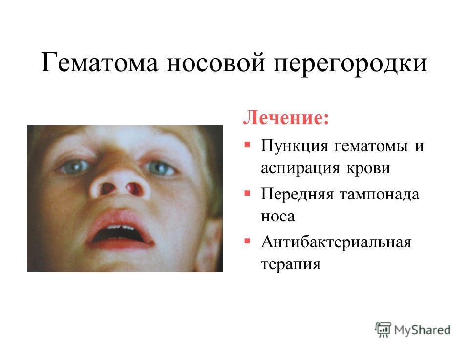 Гематома носовой перегородки Лечение: Пункция гематомы и аспирация крови Передняя тампонада носа Антибактериальная терапия