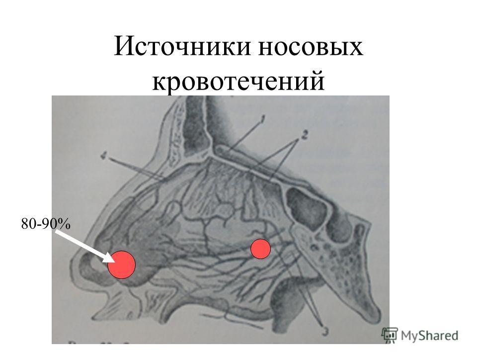 Источники носовых кровотечений 80-90%
