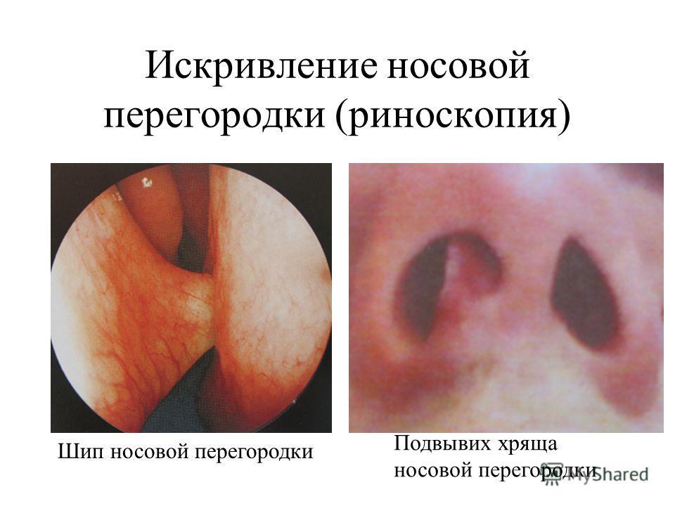 Искривление носовой перегородки (риноскопия) Подвывих хряща носовой перегородки Шип носовой перегородки