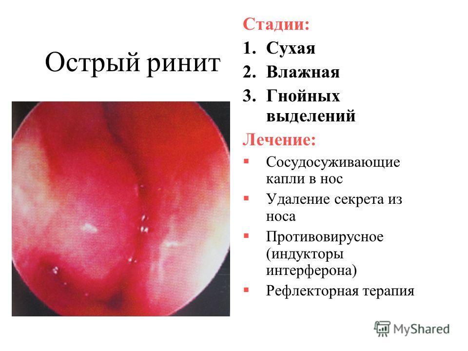 Острый ринит Стадии: 1.Сухая 2.Влажная 3.Гнойных выделений Лечение: Сосудосуживающие капли в нос Удаление секрета из носа Противовирусное (индукторы интерферона) Рефлекторная терапия