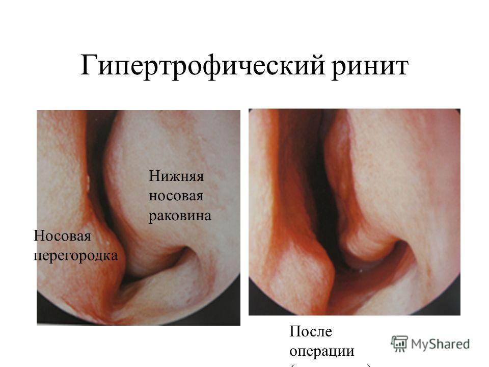 vaginoplastika-pri-suzhenii-vlagalisha-posle-luchevoy-terapii