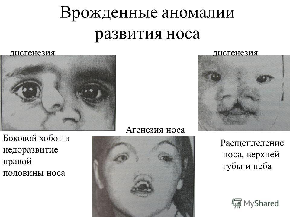 Врожденные аномалии развития носа Боковой хобот и недоразвитие правой половины носа Расщеплеление носа, верхней губы и неба дисгенезия Агенезия носа