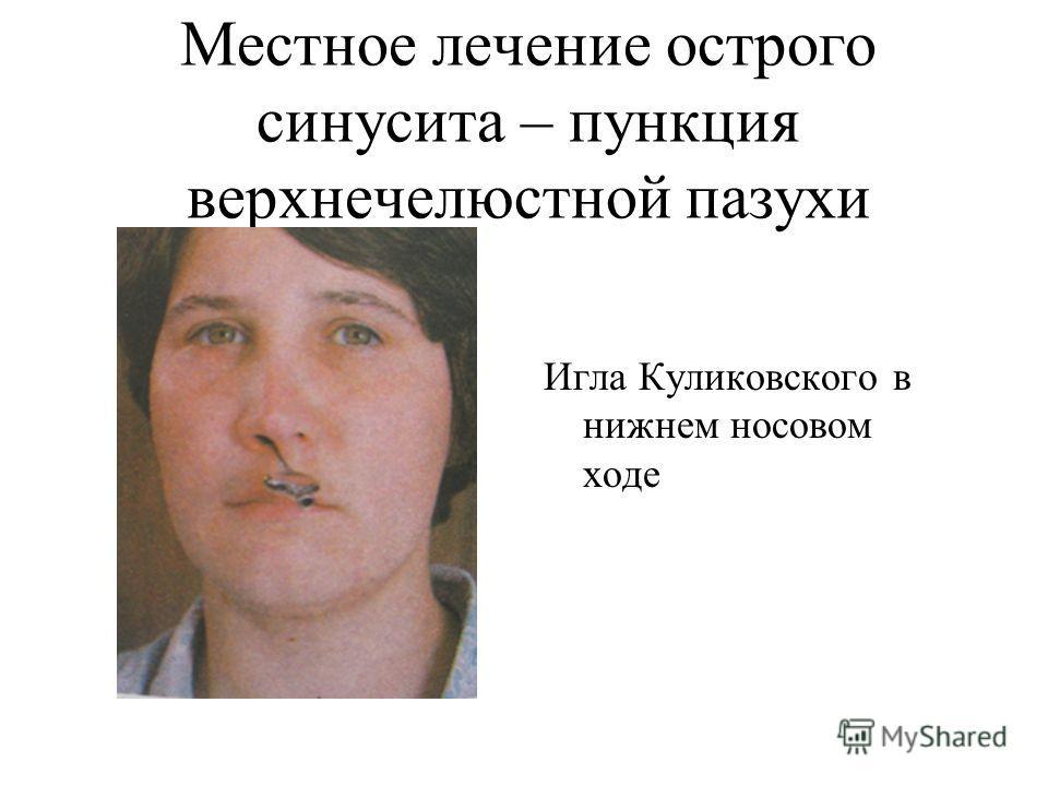 Местное лечение острого синусита – пункция верхнечелюстной пазухи Игла Куликовского в нижнем носовом ходе