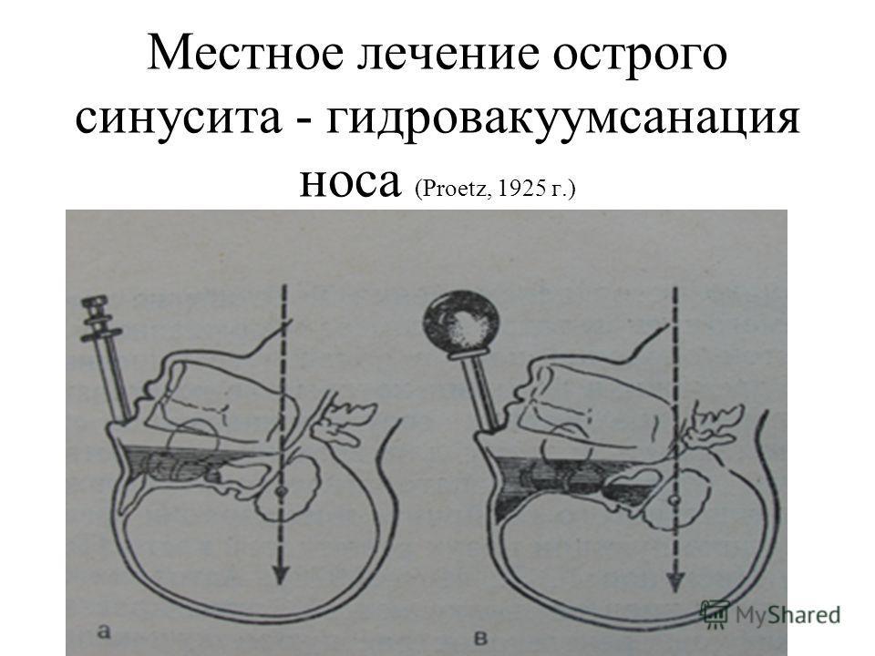 Местное лечение острого синусита - гидровакуумсанация носа (Proetz, 1925 г.)