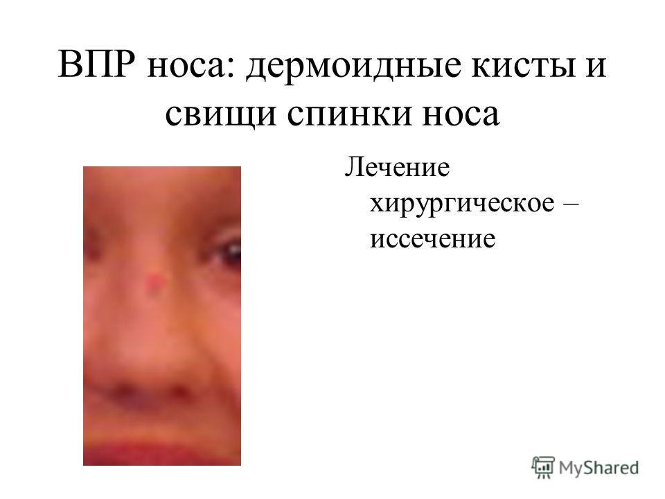 ВПР носа: дермоидные кисты и свищи спинки носа Лечение хирургическое – иссечение