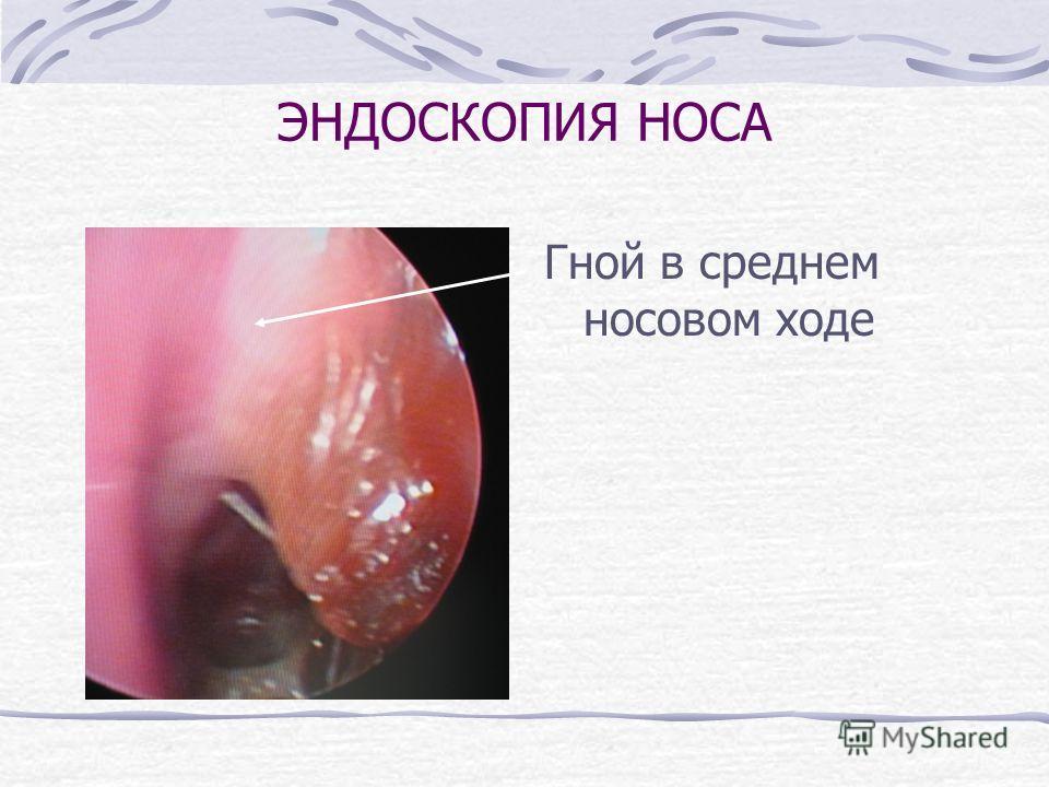 ЭНДОСКОПИЯ НОСА Гной в среднем носовом ходе