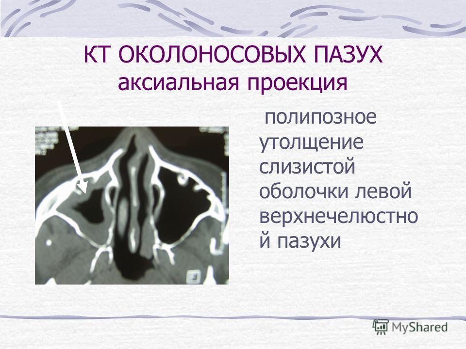 КТ ОКОЛОНОСОВЫХ ПАЗУХ аксиальная проекция полипозное утолщение слизистой оболочки левой верхнечелюстно й пазухи