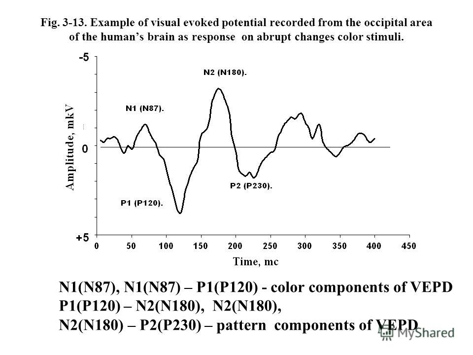 Fig. 3-13. Example of visual evoked potential recorded from the occipital area of the humans brain as response on abrupt changes color stimuli. N1(N87), N1(N87) – P1(P120) - color components of VEPD P1(P120) – N2(N180), N2(N180), N2(N180) – P2(P230)