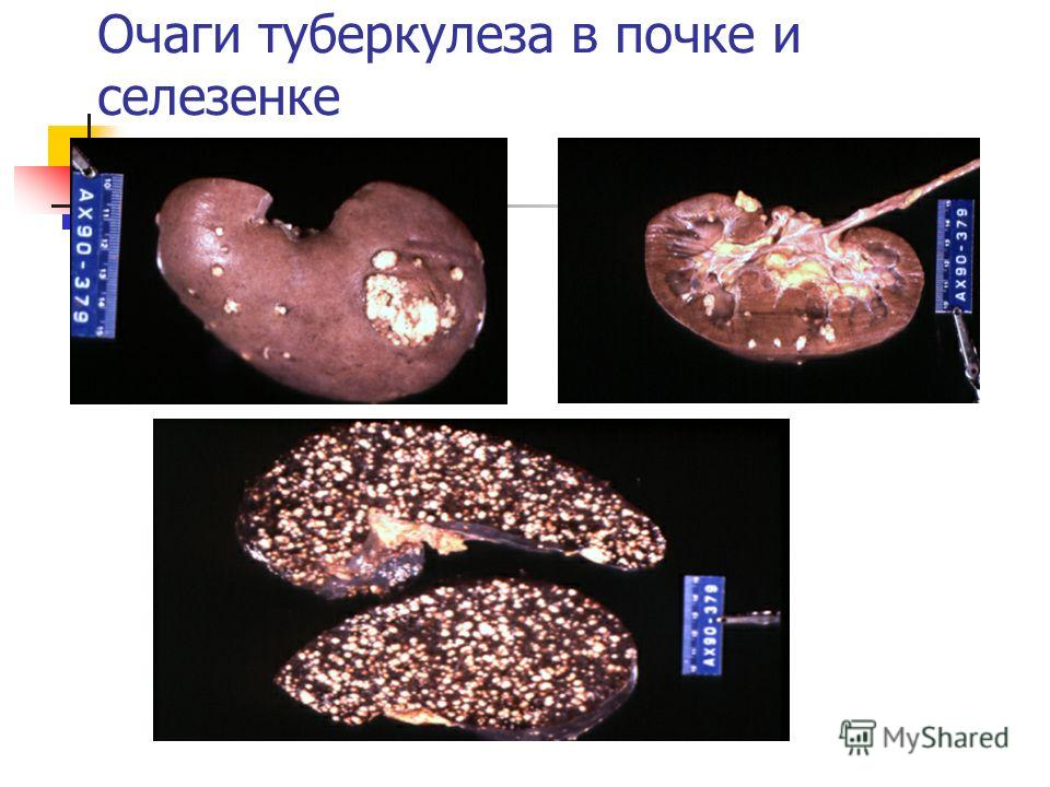 Очаги туберкулеза в почке и селезенке