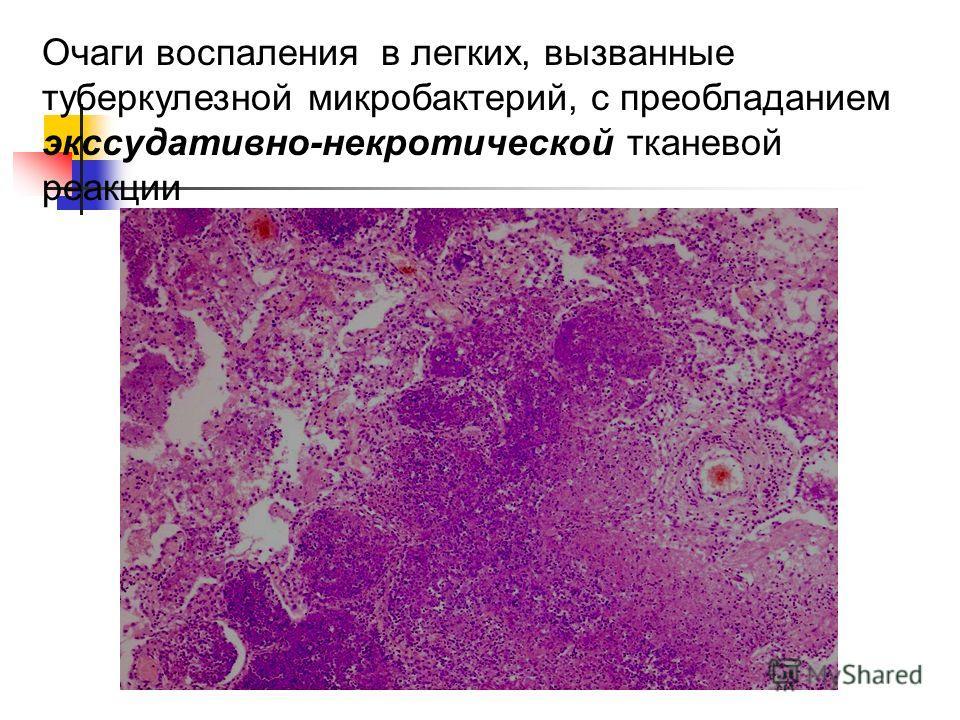 Очаги воспаления в легких, вызванные туберкулезной микробактерий, с преобладанием экссудативно-некротической тканевой реакции