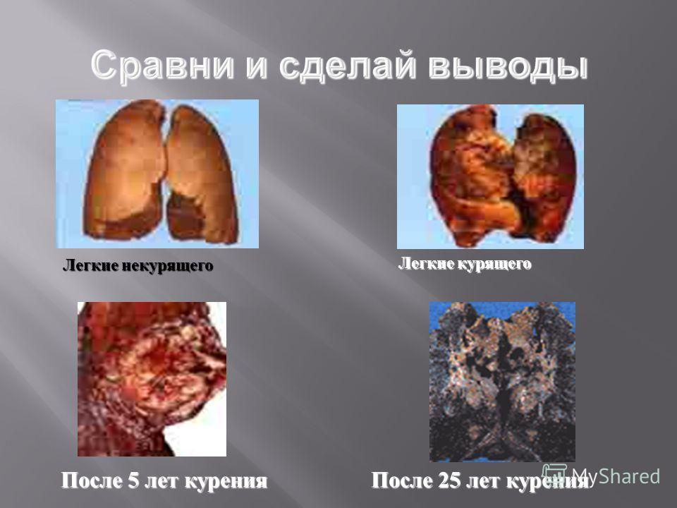 После 5 лет курения После 25 лет курения Легкие некурящего Легкие курящего