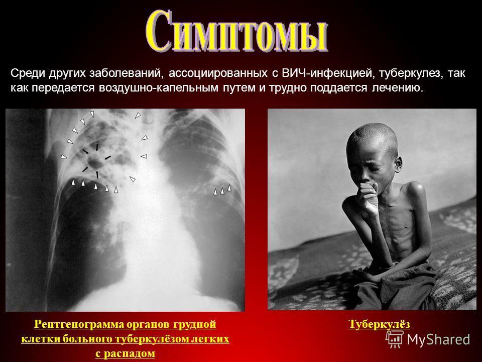 Среди других заболеваний, ассоциированных с ВИЧ-инфекцией, туберкулез, так как передается воздушно-капельным путем и трудно поддается лечению. Рентгенограмма органов грудной клетки больного туберкулёзом легких с распадом Туберкулёз