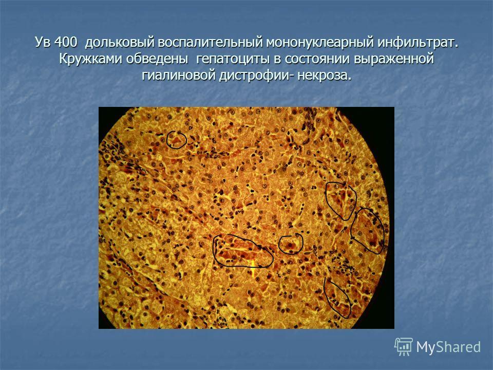 Ув 400 дольковый воспалительный мононуклеарный инфильтрат. Кружками обведены гепатоциты в состоянии выраженной гиалиновой дистрофии- некроза.
